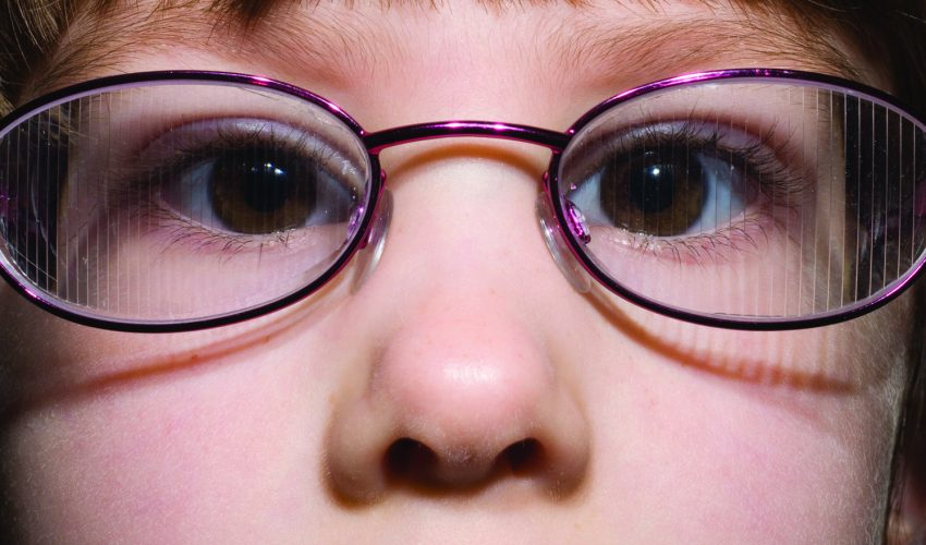 STRABISMUS-PIC-1